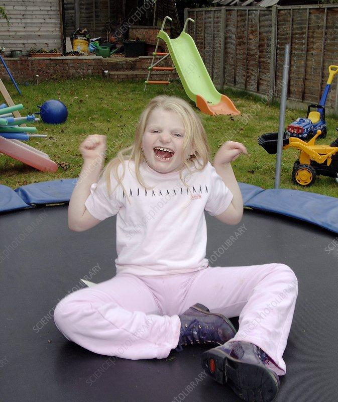 angelman syndrome stock image