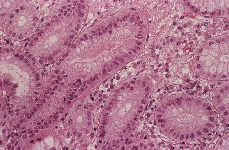 Stomach metaplasia - Stock Image - M210/0240 - Science ...
