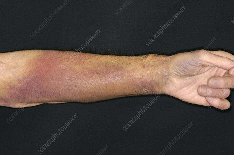 Bruised warfarin patient's arm - Stock Image - M330/1723 ...