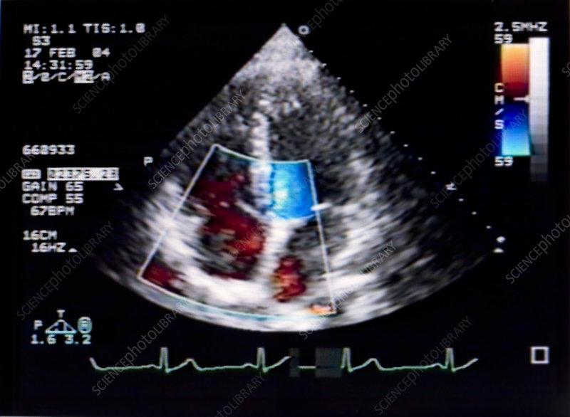 Doppler Echocardiogram of Heart - Stock Image - M406/0319 ...