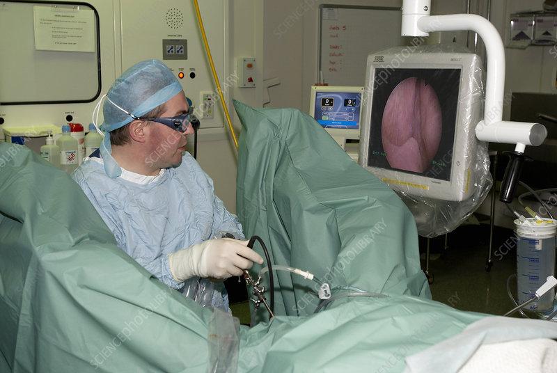 Endoscopic prostate surgery - Stock Image - M440/0212 ...