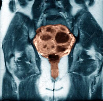 Ovarian cancer MRI - Stock Image - M850/0401 - Science ...