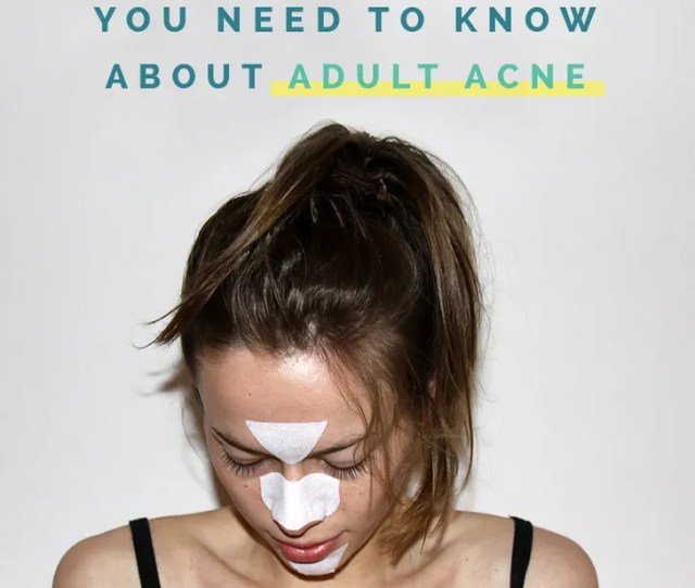 Adult Acne Facts