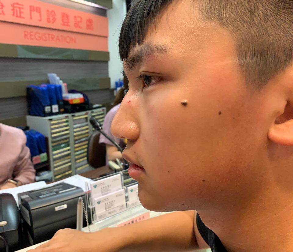香港眾志副主席鄭家朗稱被3男襲擊