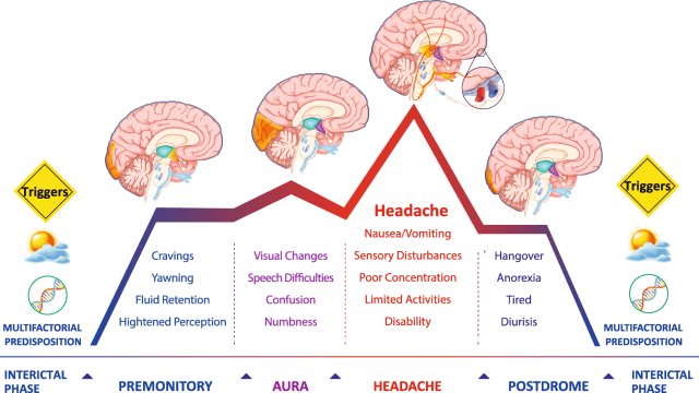 Different Phases of Migraine and Associated Symptoms
