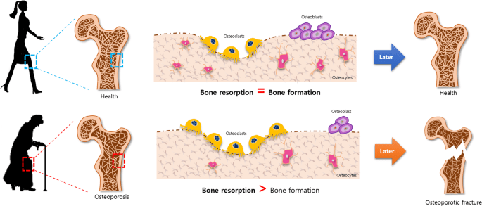 Direct conversion of fibroblasts to osteoblasts as a novel strategy for bone  regeneration in elderly individuals | Experimental & Molecular Medicine