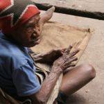 Kvinna med stympade fingrar. Wamena