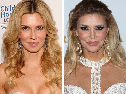 Brandi Glanville Slams Rumors Shes Had Work Done On Her