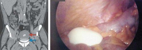 Quả trứng luộc 20 năm tuổi nằm trong bụng một ngời bệnh tại Anh