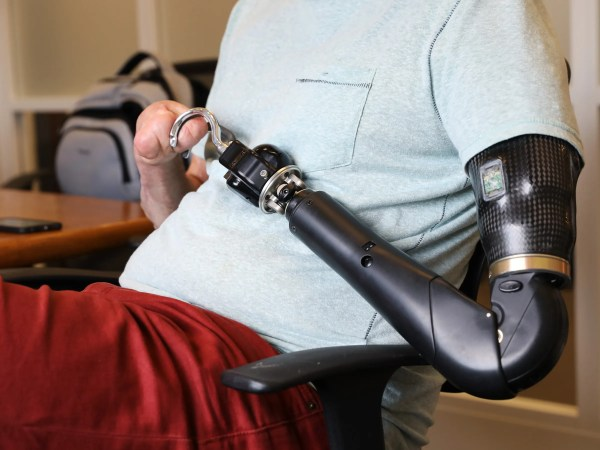 Bionic Limbs 'learn' Open Beer Wired