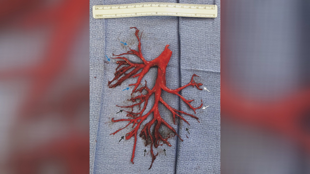 Man admitted to hospital coughs up blood clot in shape of lung