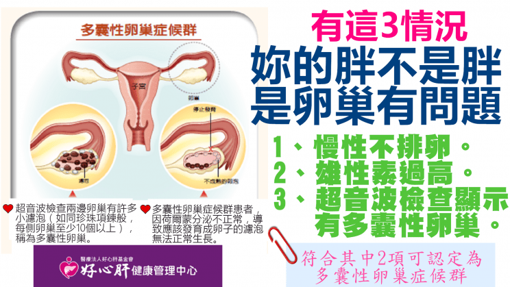 通告女星也得這個病!有這3種情況「妳的胖不是胖」 而是卵巢出了問題 - Yahoo奇摩新聞