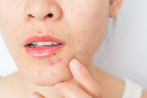 長時間戴口罩而造成「口罩痘」狂冒!專業皮膚科醫生:「戴口罩前不可這樣做...」10招預防痘痘長不停 - Yahoo ...