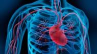 Der Herzkatheter ermöglicht oftmals Diagnose und Behandlung in einem einzigen Eingriff.