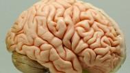 Könnten wir bald künstlich hergestellte Hirn-Transplantate in unseren Köpfen tragen?