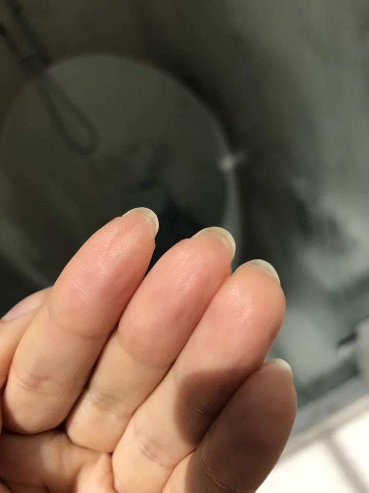 Bump Under Fingernail : under, fingernail, Reason, Growth, Under, Nails, POPSUGAR, Beauty
