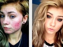 HeyThereImShannon's Acne Coverage Pharmacy Foundation Routine