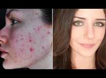 Melanie Murphy's How to Cover Acne and Scars (If You Want to)