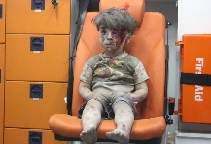Omran, a four-year-old Syrian boy