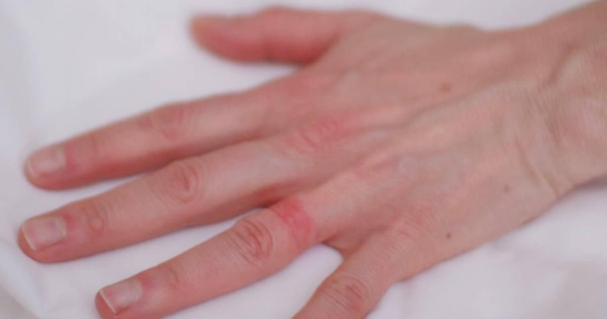 Wedding ring rash a reallife sevenyear itch