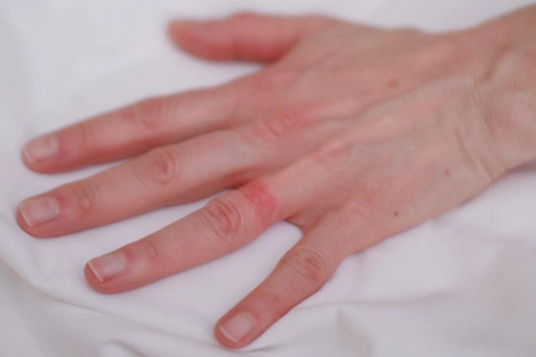Wedding ring rash a reallife sevenyear itch  NBC News