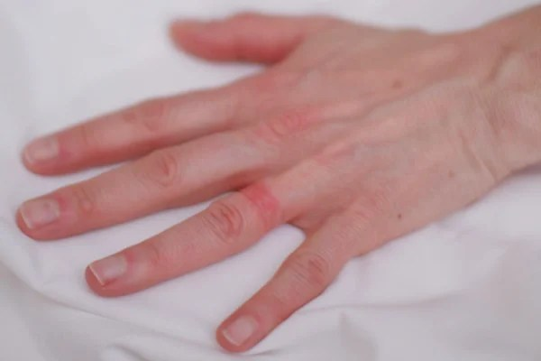 'Wedding ring rash' a real-life seven-year itch - NBC News