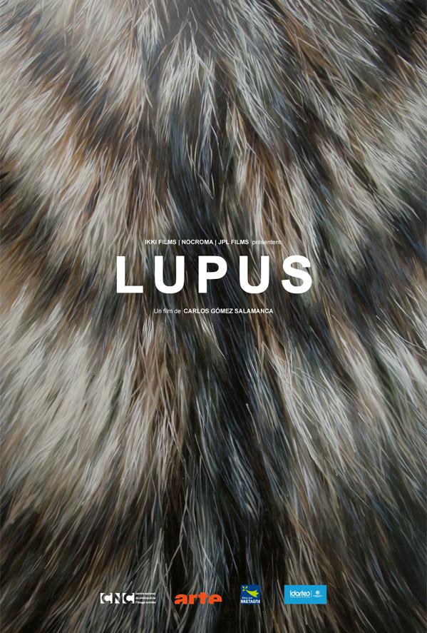 Lupus Poster
