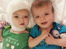 Twin boys formerly conjoined at the head twins go to rehab - TODAY.com