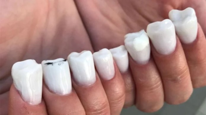 Image result for ant in nail trend