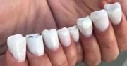'molar nails' creepy