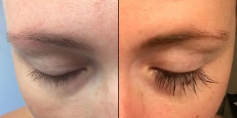 Fade Serum And After