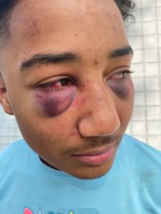 17 yr old Black Teen, Devin Carter Stockton Police Brutality Body Cam Footage