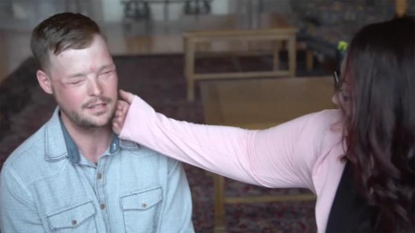 Woman Meet Man Husband Face In Transplant