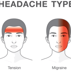 Face Pressure Points Diagram Wabco C3 Wiring Migraine Or Tension? Know The Different Types Of Headaches - Today.com