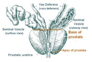 Study: prostate cancer rate unusually high in St Louis