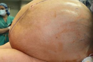 132-pound tumor removed from Connecticut woman