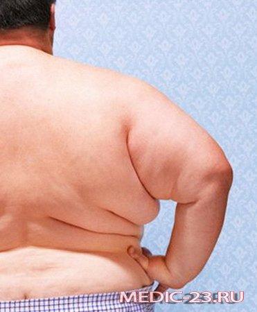 Лечение ожирения гормоном радости