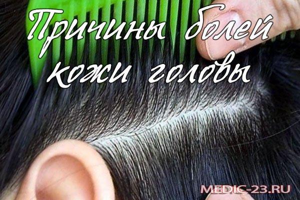 Почему болит кожа головы под волосами?