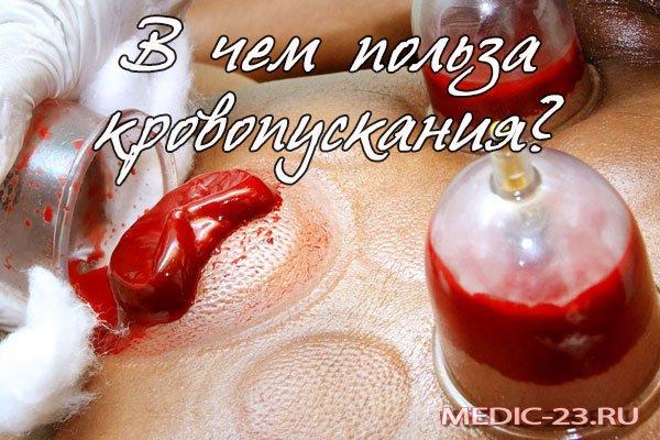 Кровопускание: польза и вред