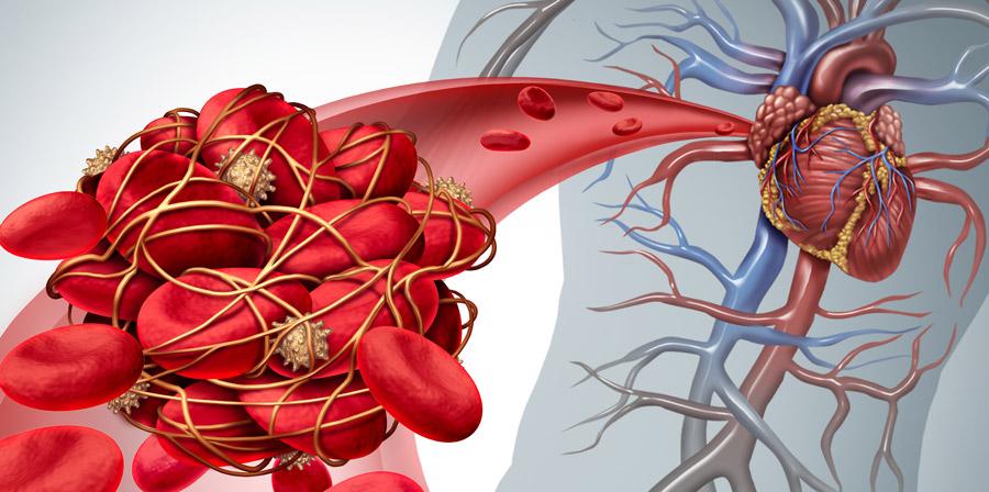 Żylna choroba zakrzepowo-zatorowa – nowoczesna diagnostyka laboratoryjna