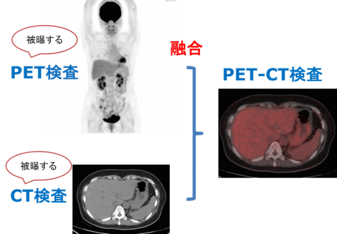 Exposure of pet ct examination