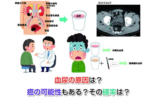 Cause of hematuria Eye-catching image
