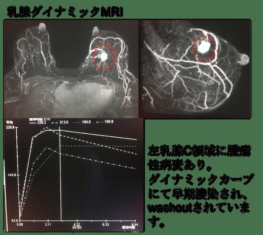 breast mri dynamic curve