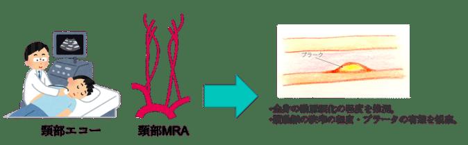 cerebral artery echo MRA figure1