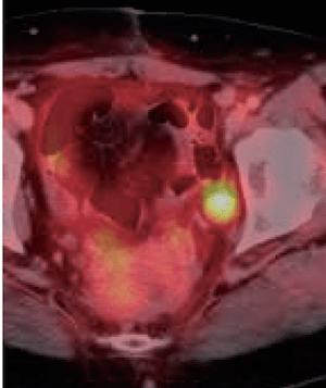 Lymph meta colon Ca