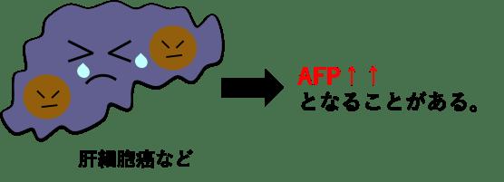 肝細胞癌でAFPが高値になっている図