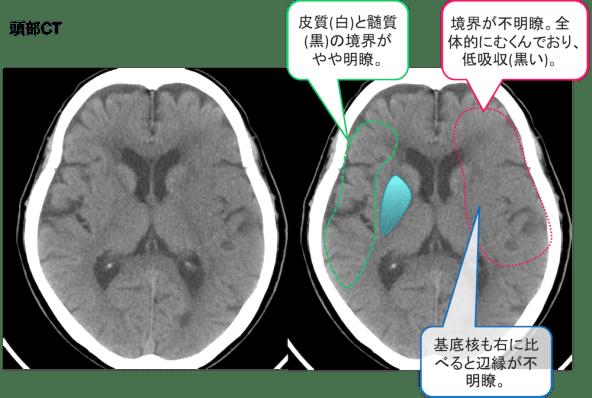 cerebral-infarction-ct-findings