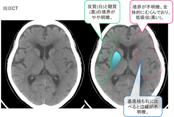 cerebral-infarction-ct-findings