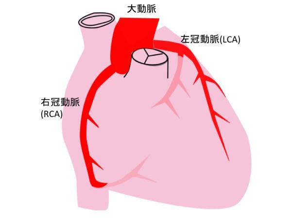 coronal-artery-002