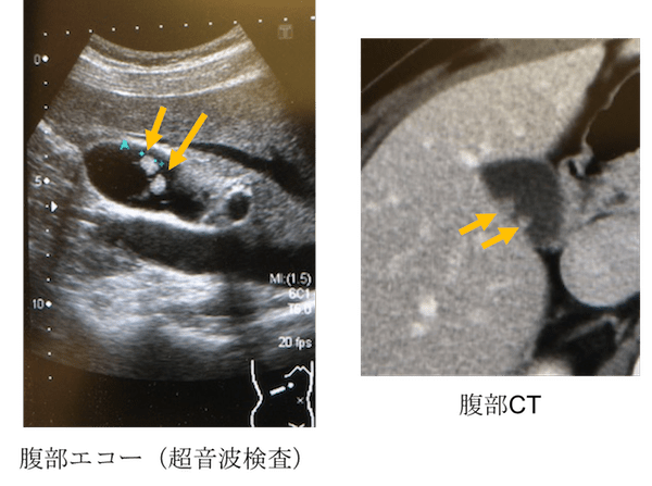 gallbladder polyp echo and CT findings